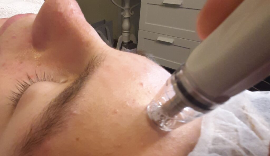 Silkpeel Ansigtsbehandling